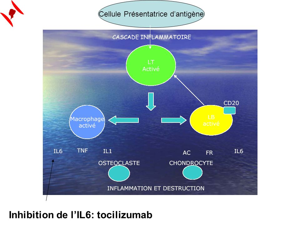 Inhibition de lIL6: tocilizumab Cellule Présentatrice dantigène