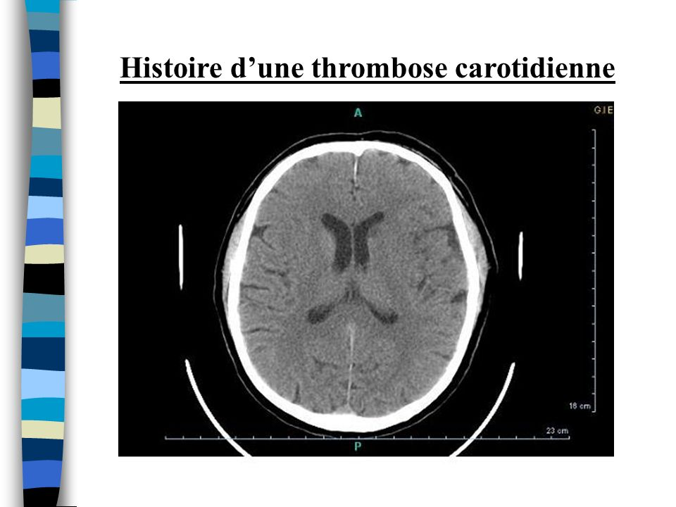 Histoire dune thrombose carotidienne
