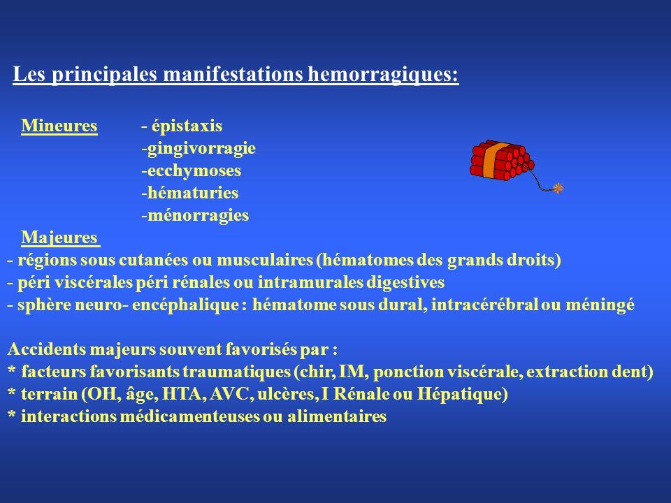 Les principales manifestations hemorragiques: Mineures - épistaxis -gingivorragie -ecchymoses -hématuries -ménorragies Majeures - régions sous cutanée