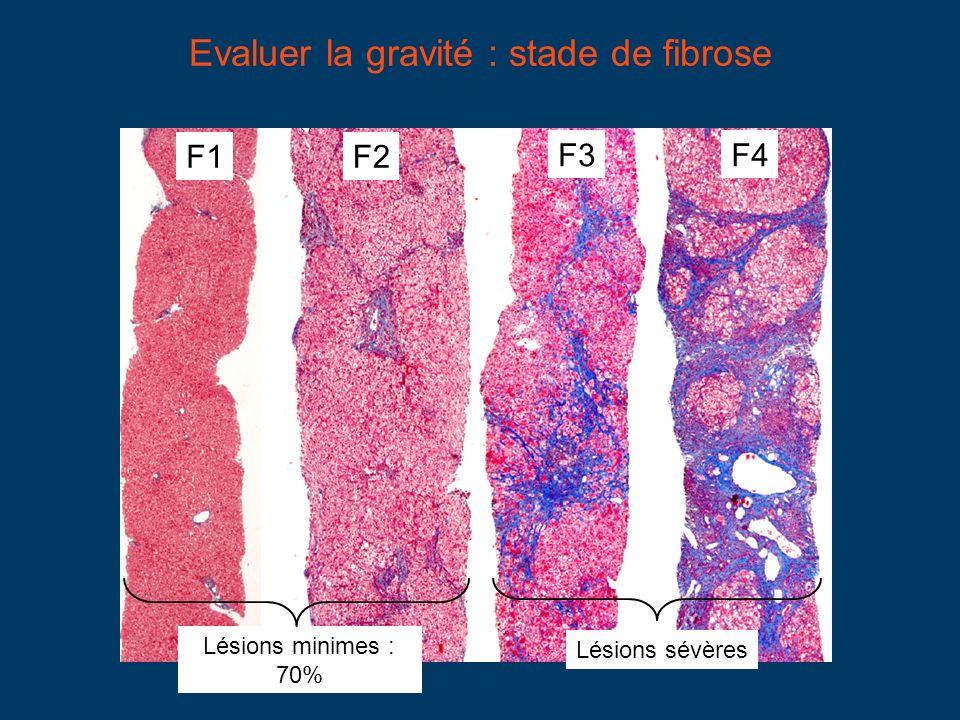 F1F2 F3F4 Lésions minimes : 70% Lésions sévères Evaluer la gravité : stade de fibrose