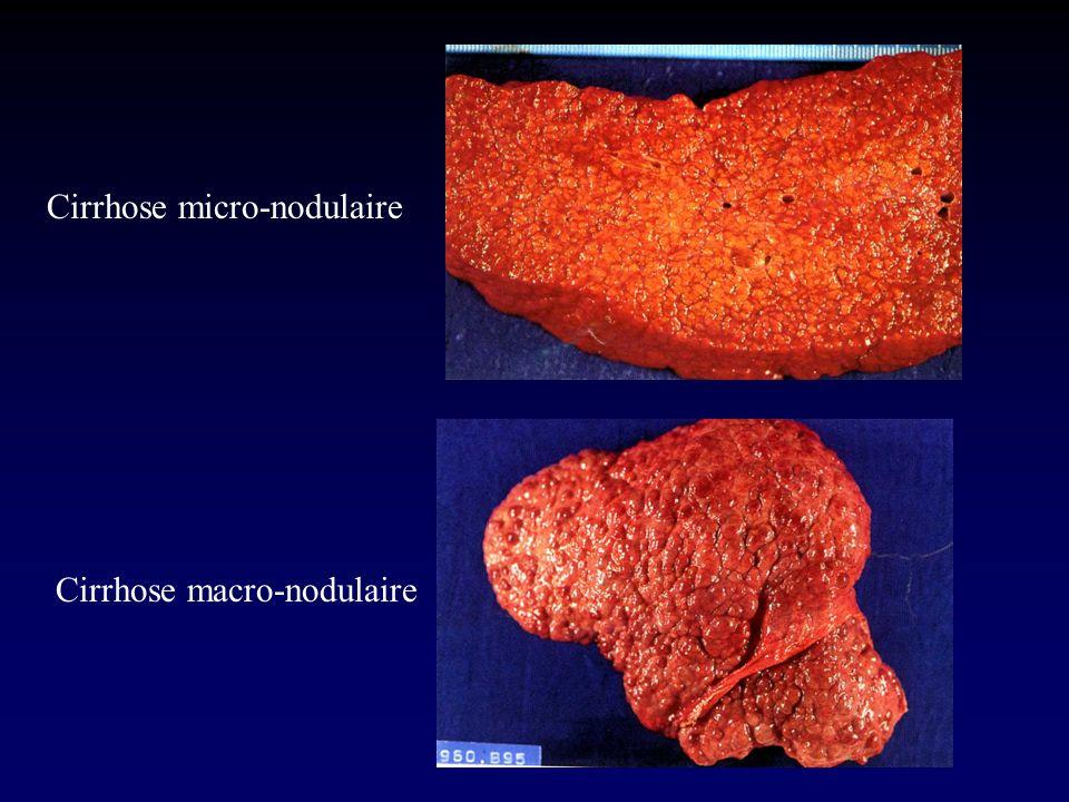 Cirrhose micro-nodulaire Cirrhose macro-nodulaire