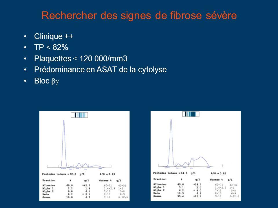 Rechercher des signes de fibrose sévère Clinique ++ TP < 82% Plaquettes < 120 000/mm3 Prédominance en ASAT de la cytolyse Bloc