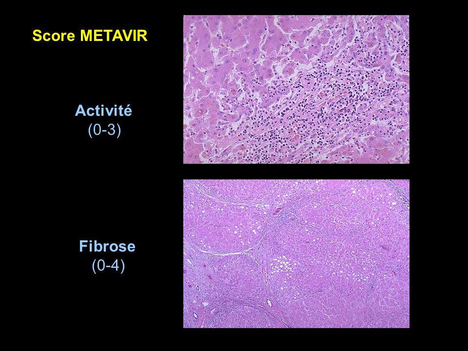 Activité (0-3) Fibrose (0-4) Score METAVIR