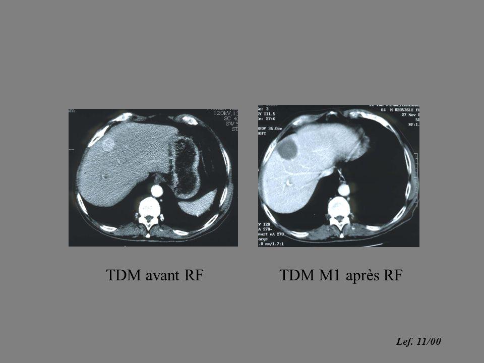 TDM avant RFTDM M1 après RF Lef. 11/00