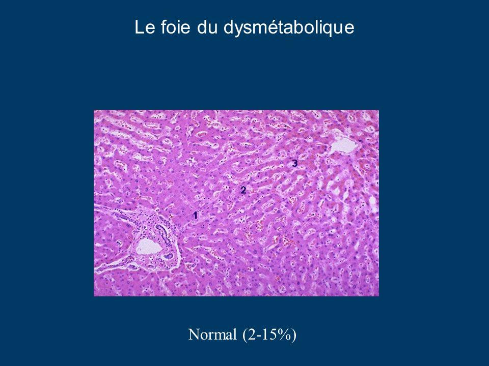 Le foie du dysmétabolique Normal (2-15%)