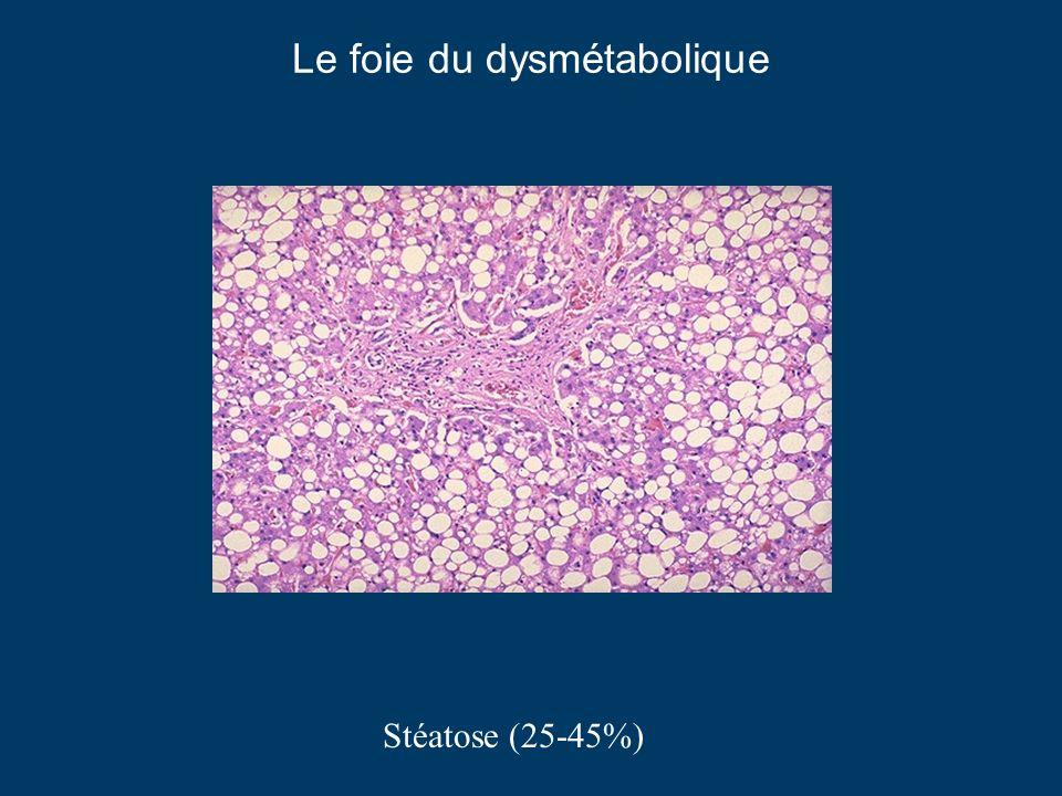 Le foie du dysmétabolique Stéatose (25-45%)