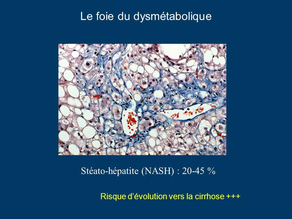 Le foie du dysmétabolique Stéato-hépatite (NASH) : 20-45 % Risque dévolution vers la cirrhose +++