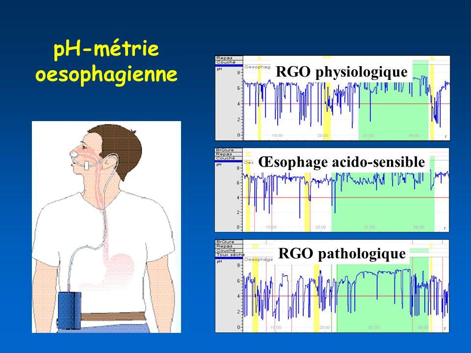 pH-métrie oesophagienne Œsophage acido-sensible RGO physiologique RGO pathologique