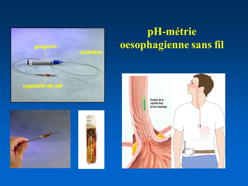 pH-métrie oesophagienne sans fil capsulle de pH cathéter poignée