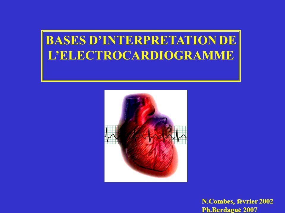 BASES DINTERPRETATION DE LELECTROCARDIOGRAMME N.Combes, février 2002 Ph.Berdagué 2007