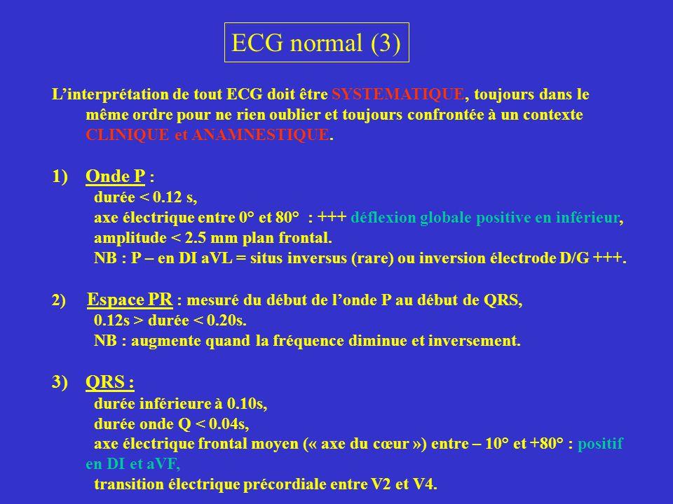 ECG normal (3) Linterprétation de tout ECG doit être SYSTEMATIQUE, toujours dans le même ordre pour ne rien oublier et toujours confrontée à un contex