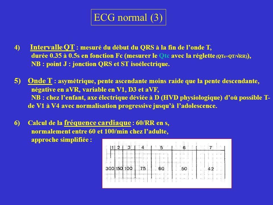 ECG normal (3) 4) Intervalle QT : mesuré du début du QRS à la fin de londe T, durée 0.35 à 0.5s en fonction Fc (mesurer le Qtc avec la réglette (QTc=Q