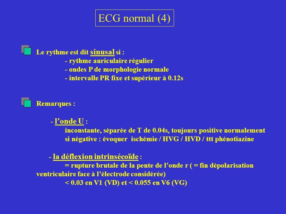 ECG normal (4) Le rythme est dit sinusal si : - rythme auriculaire régulier - ondes P de morphologie normale - intervalle PR fixe et supérieur à 0.12s
