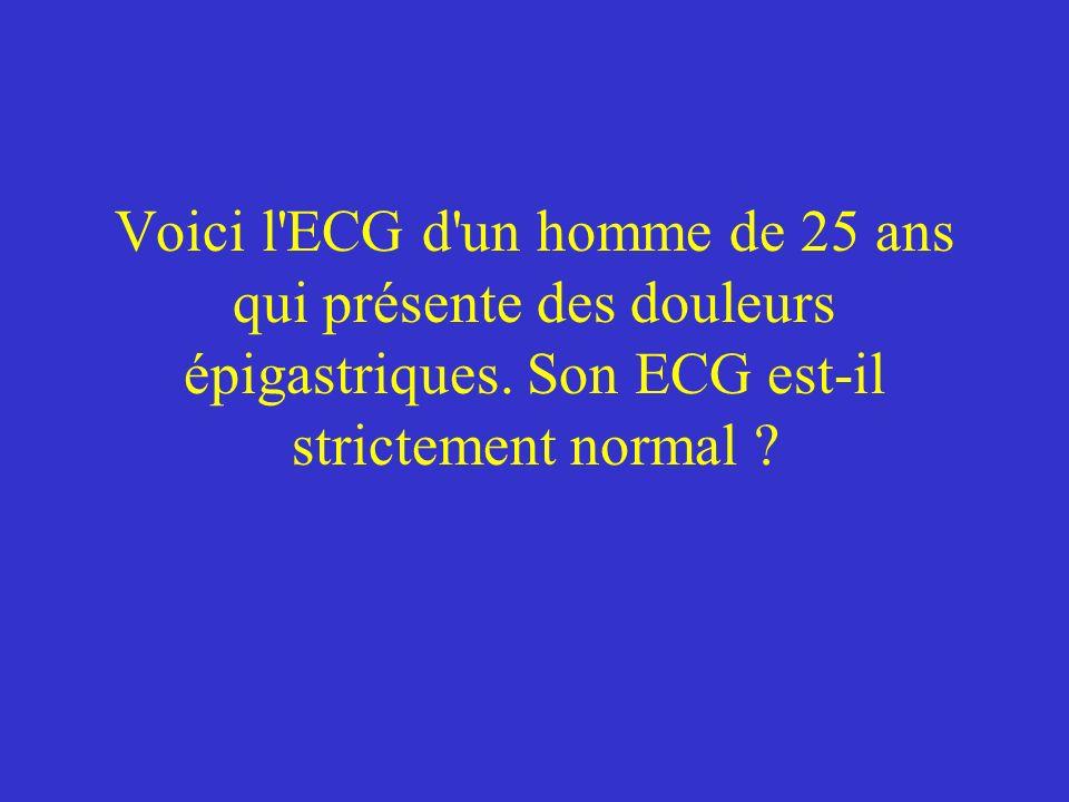 Voici l'ECG d'un homme de 25 ans qui présente des douleurs épigastriques. Son ECG est-il strictement normal ?