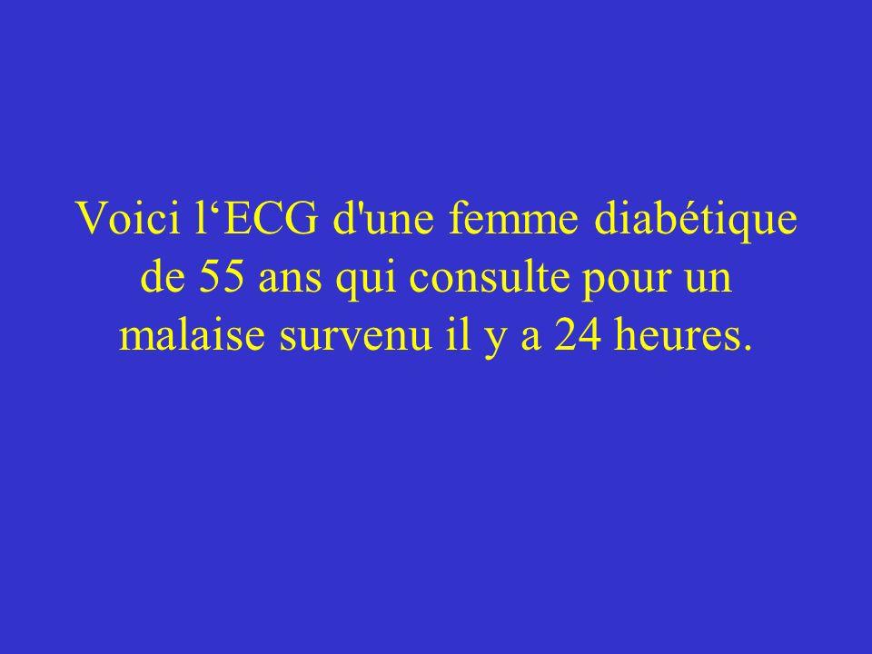 Voici lECG d'une femme diabétique de 55 ans qui consulte pour un malaise survenu il y a 24 heures.