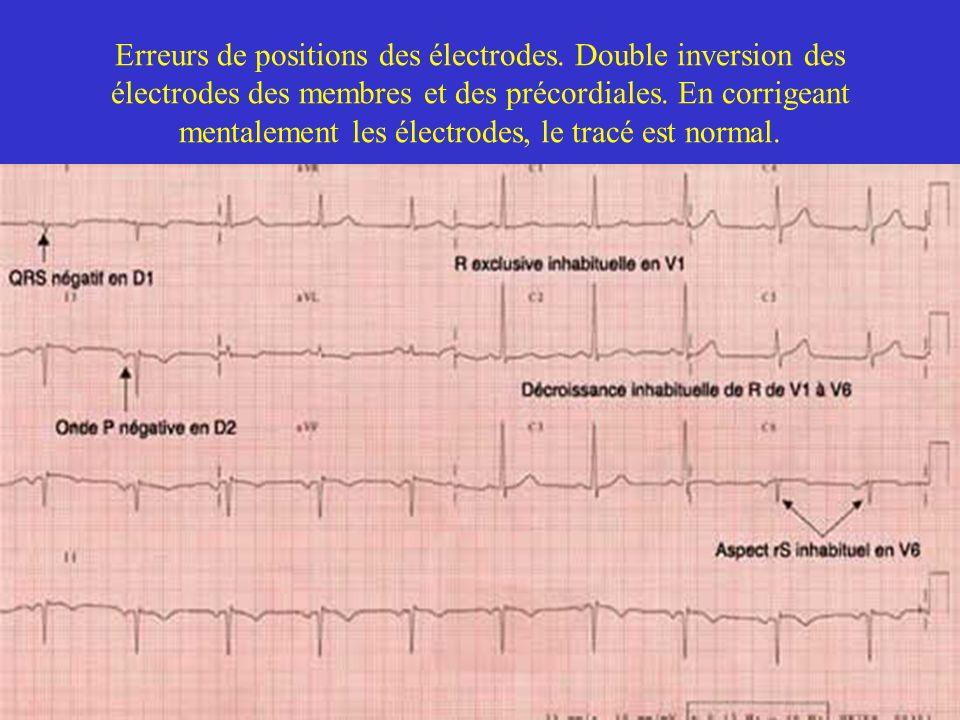 Erreurs de positions des électrodes. Double inversion des électrodes des membres et des précordiales. En corrigeant mentalement les électrodes, le tra