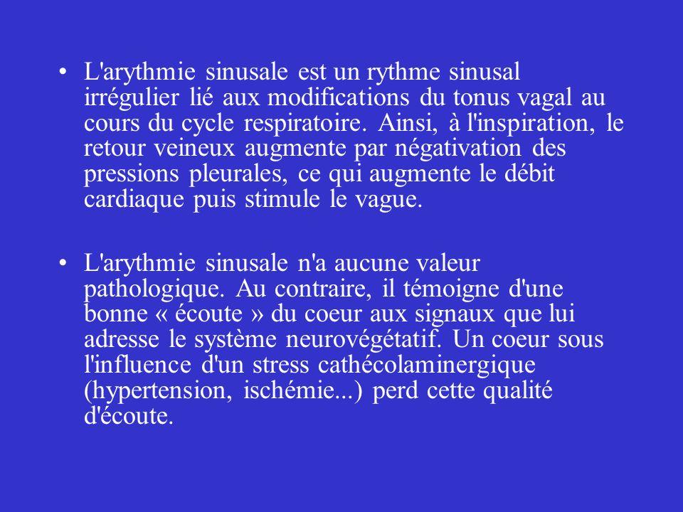 L'arythmie sinusale est un rythme sinusal irrégulier lié aux modifications du tonus vagal au cours du cycle respiratoire. Ainsi, à l'inspiration, le r