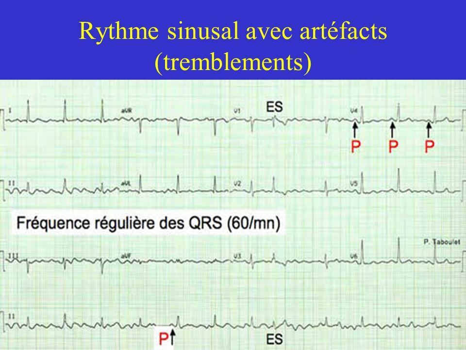 Rythme sinusal avec artéfacts (tremblements)