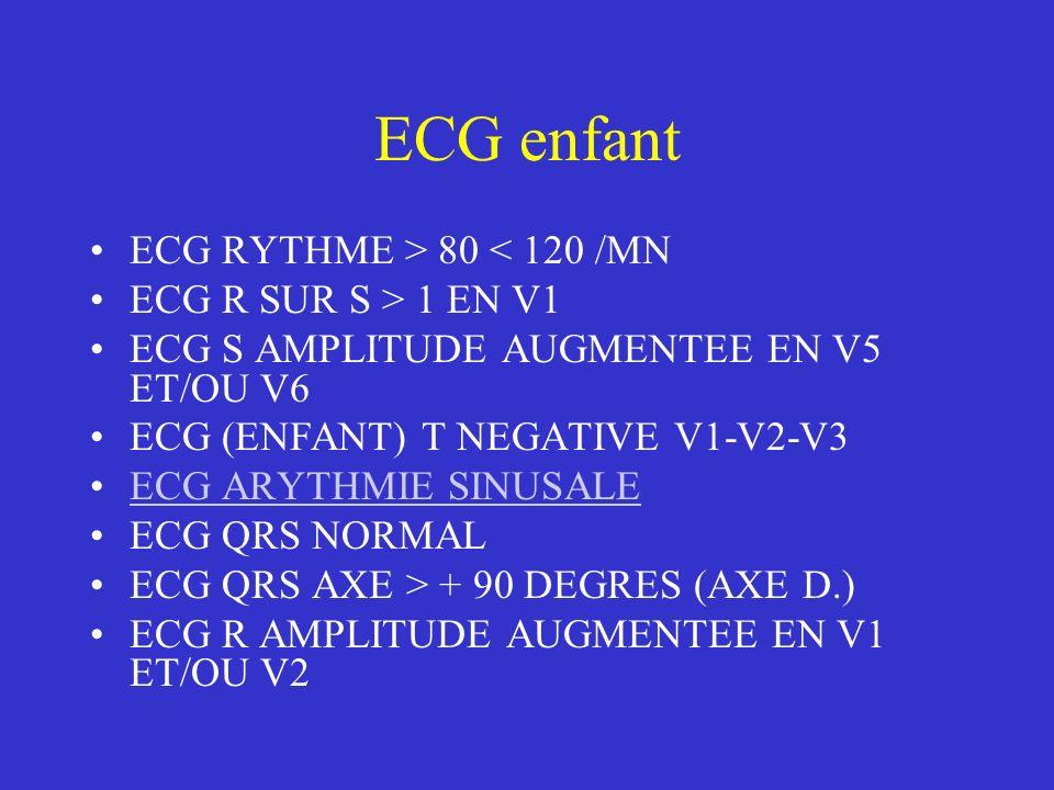 ECG enfant ECG RYTHME > 80 < 120 /MN ECG R SUR S > 1 EN V1 ECG S AMPLITUDE AUGMENTEE EN V5 ET/OU V6 ECG (ENFANT) T NEGATIVE V1-V2-V3 ECG ARYTHMIE SINU