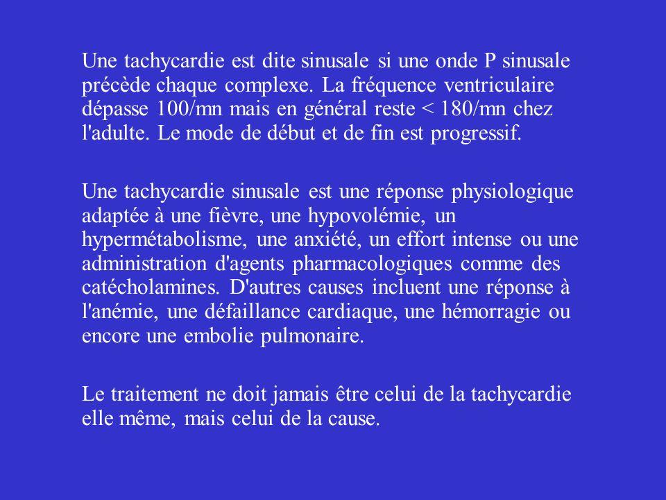 Une tachycardie est dite sinusale si une onde P sinusale précède chaque complexe. La fréquence ventriculaire dépasse 100/mn mais en général reste < 18