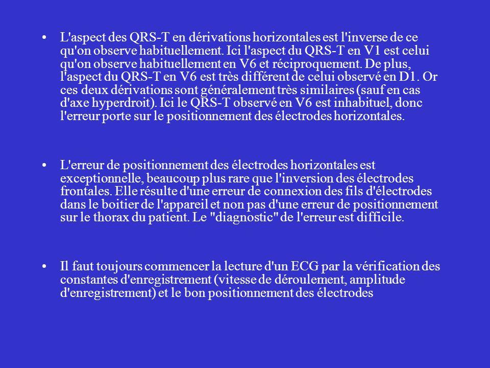 L'aspect des QRS-T en dérivations horizontales est l'inverse de ce qu'on observe habituellement. Ici l'aspect du QRS-T en V1 est celui qu'on observe h