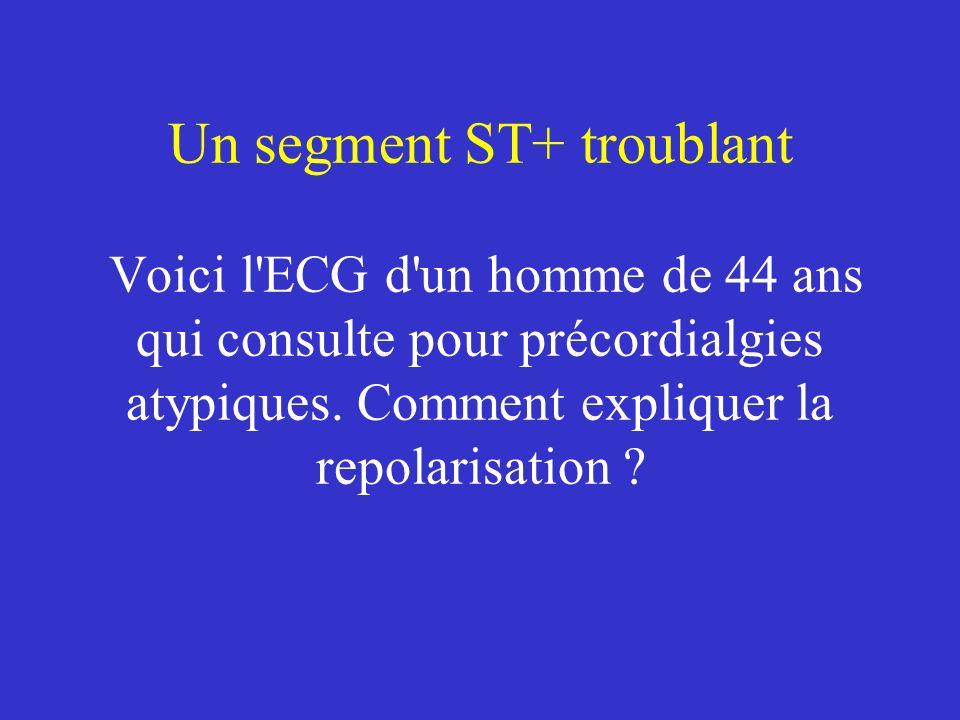 Un segment ST+ troublant Voici l'ECG d'un homme de 44 ans qui consulte pour précordialgies atypiques. Comment expliquer la repolarisation ?