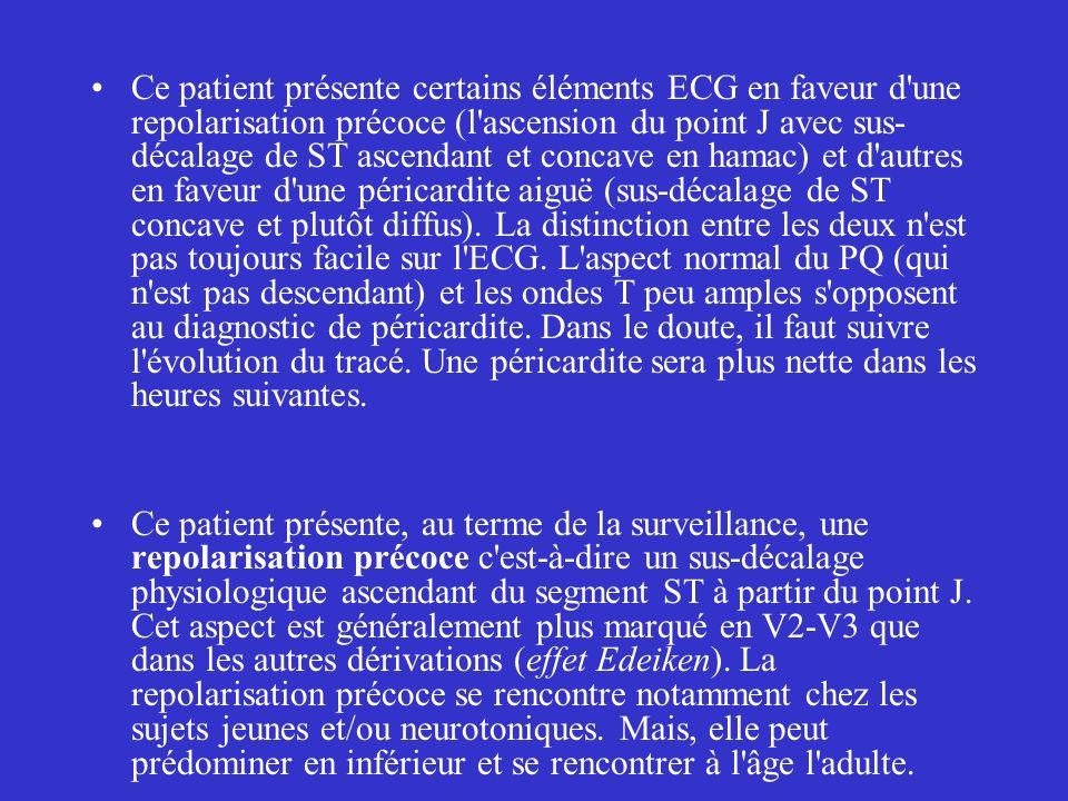 Ce patient présente certains éléments ECG en faveur d'une repolarisation précoce (l'ascension du point J avec sus- décalage de ST ascendant et concave