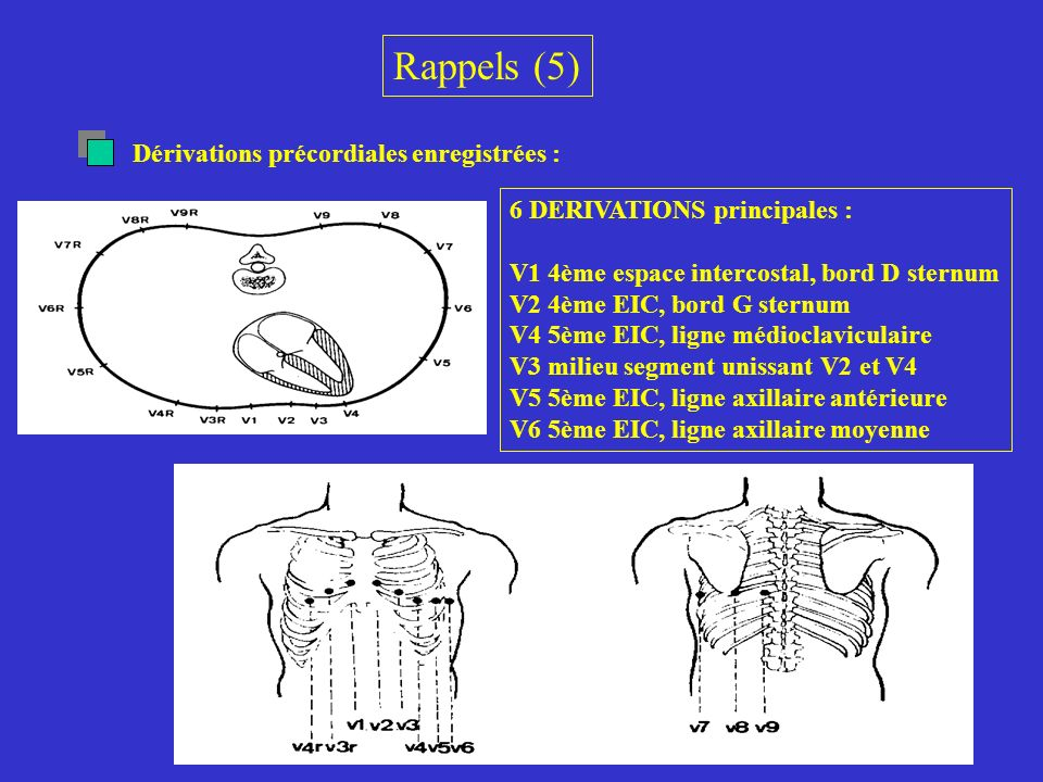Rappels (5) Dérivations précordiales enregistrées : 6 DERIVATIONS principales : V1 4ème espace intercostal, bord D sternum V2 4ème EIC, bord G sternum