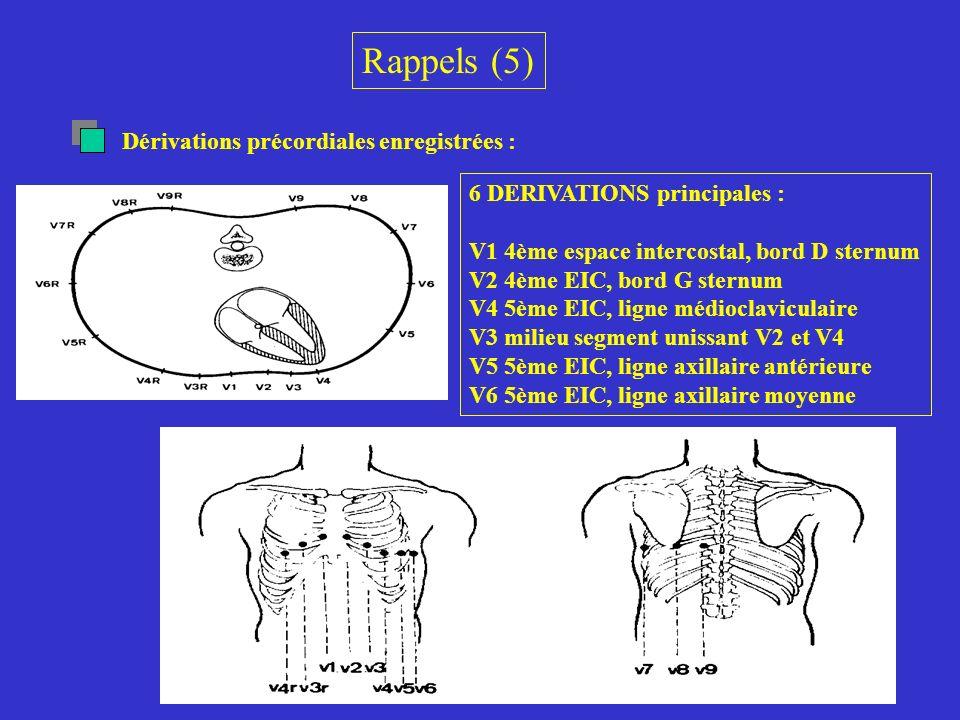 L aspect des QRS-T en dérivations horizontales est l inverse de ce qu on observe habituellement.