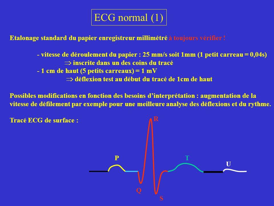 ECG normal (1) Etalonage standard du papier enregistreur millimétré à toujours vérifier ! - vitesse de déroulement du papier : 25 mm/s soit 1mm (1 pet
