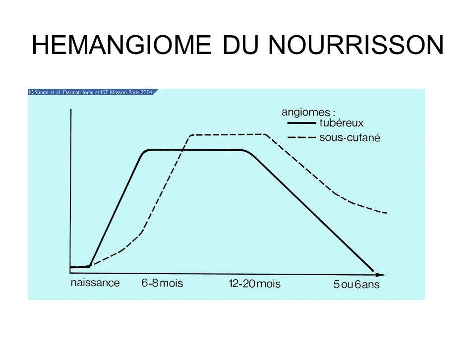 HEMANGIOME DU NOURRISSON