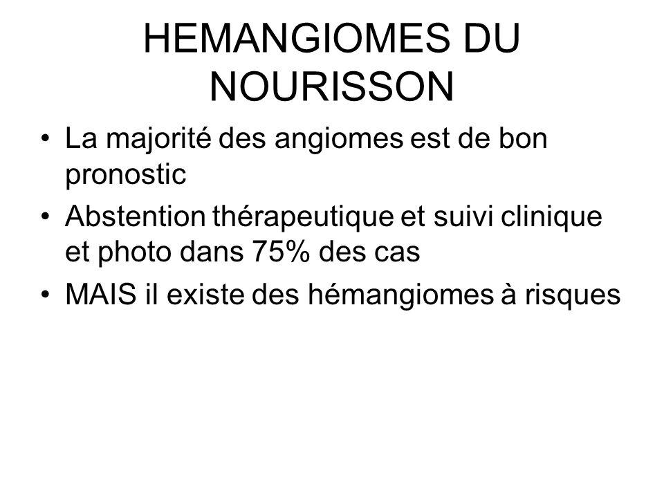 HEMANGIOMES DU NOURISSON La majorité des angiomes est de bon pronostic Abstention thérapeutique et suivi clinique et photo dans 75% des cas MAIS il ex