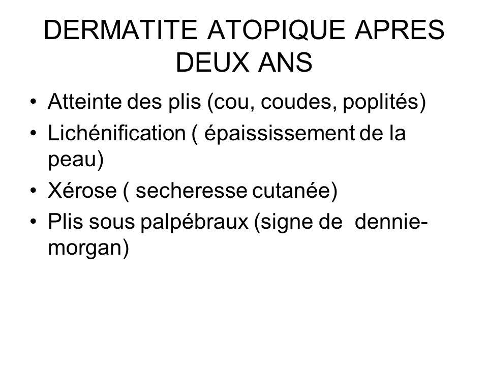 DERMATITE ATOPIQUE APRES DEUX ANS Atteinte des plis (cou, coudes, poplités) Lichénification ( épaississement de la peau) Xérose ( secheresse cutanée)
