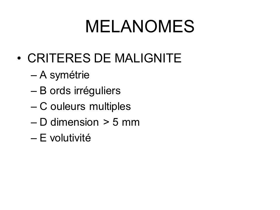 MELANOMES CRITERES DE MALIGNITE –A symétrie –B ords irréguliers –C ouleurs multiples –D dimension > 5 mm –E volutivité