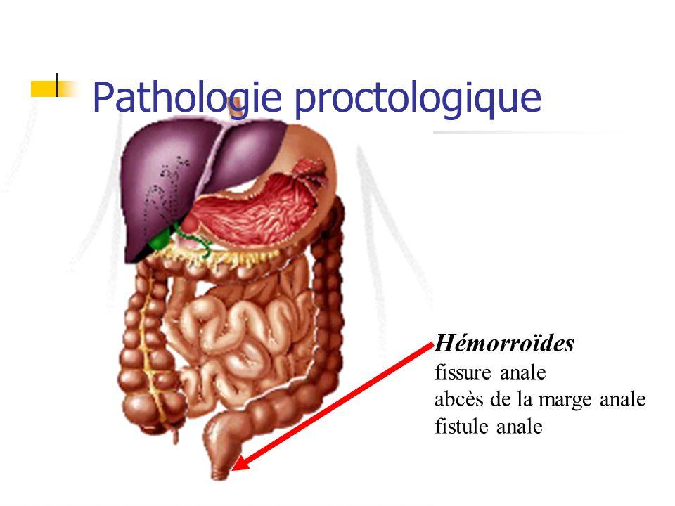 Fissure anale Examen de la marge anale : Fissure Douleur Contracture sphincter