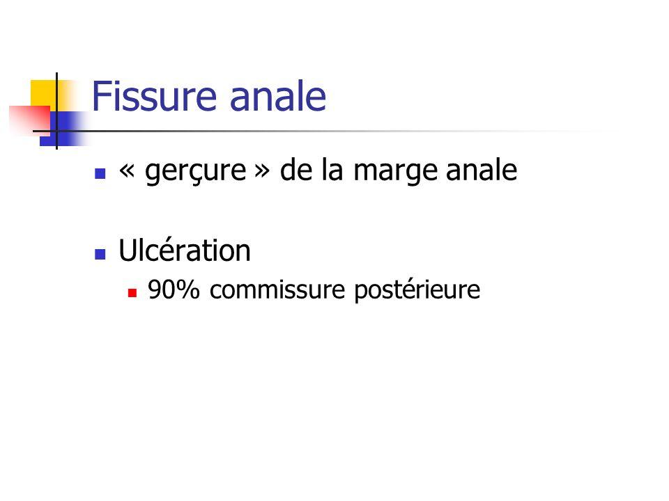 Fissure anale « gerçure » de la marge anale Ulcération 90% commissure postérieure