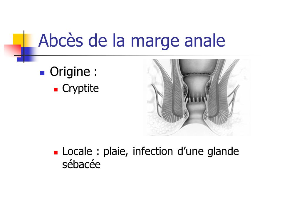 Abcès de la marge anale Origine : Cryptite Locale : plaie, infection dune glande sébacée