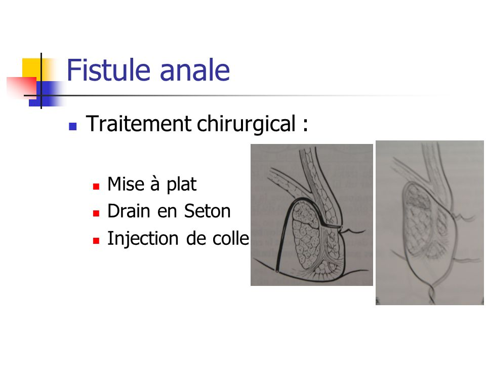 Fistule anale Traitement chirurgical : Mise à plat Drain en Seton Injection de colle