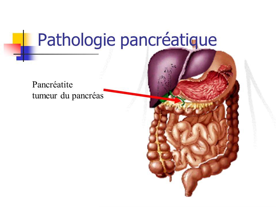 Pathologie pancréatique Pancréatite tumeur du pancréas