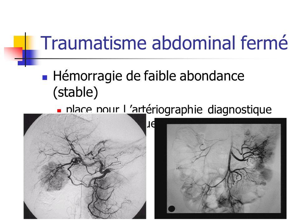 Traumatisme abdominal fermé Hémorragie de faible abondance (stable) place pour l artériographie diagnostique +/- thérapeutique (embolisation)