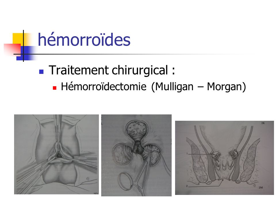 hémorroïdes Traitement chirurgical : Hémorroïdectomie (Mulligan – Morgan)