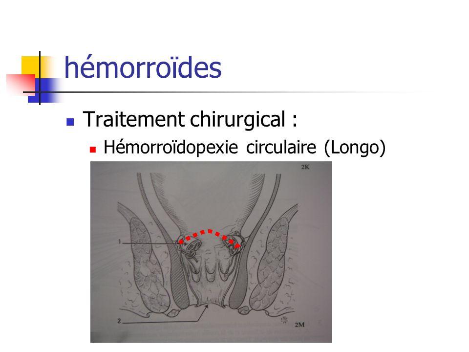 Abcès de la marge anale Traitement : Chirurgical Incision – lavage – méchage/drainage Antibiotiques pendant 5j si abcès volumineux