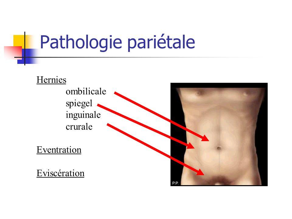 Hernie ombilicale Principe du Traitement : refoulement du sac herniaire en intra-abdominal réparation pariétale : suture prothèse rétromusculaire prothèse intrapéritonéale
