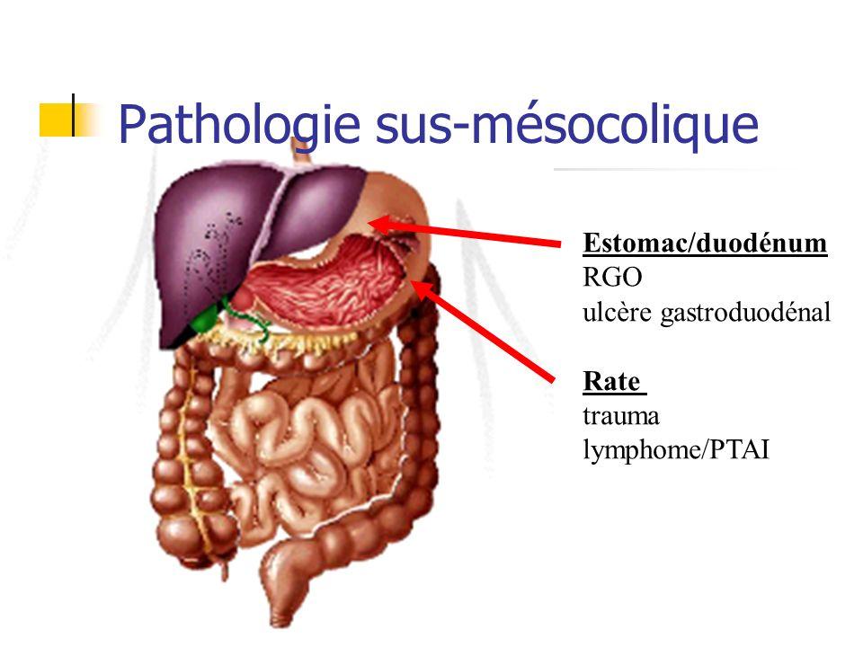 Pathologie sus-mésocolique Estomac/duodénum RGO ulcère gastroduodénal Rate trauma lymphome/PTAI