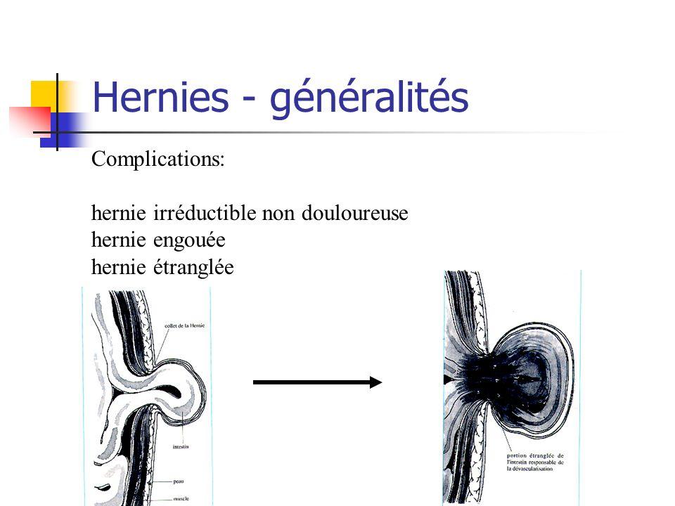 Hernies - généralités Complications: hernie irréductible non douloureuse hernie engouée hernie étranglée