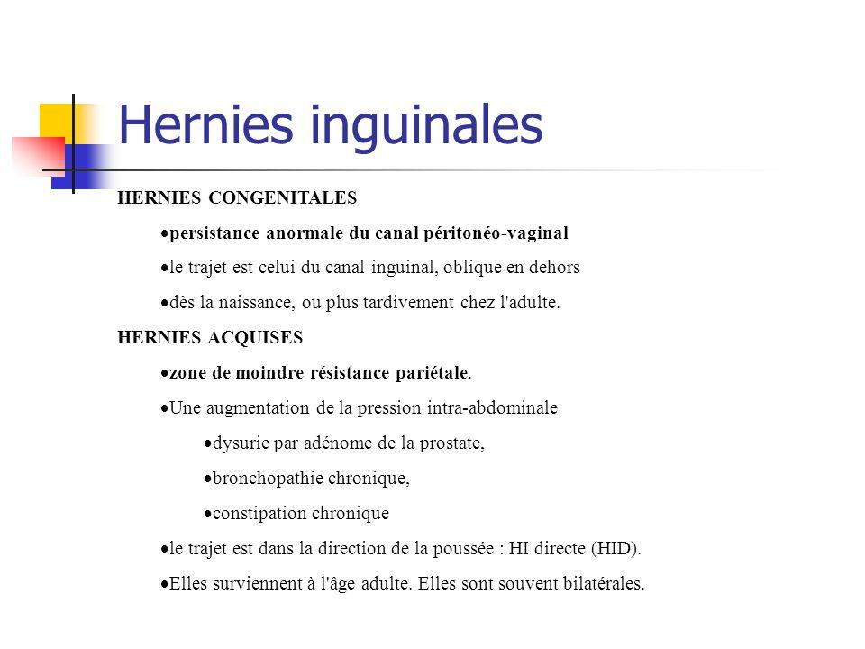 Hernies inguinales HERNIES CONGENITALES persistance anormale du canal péritonéo-vaginal le trajet est celui du canal inguinal, oblique en dehors dès l