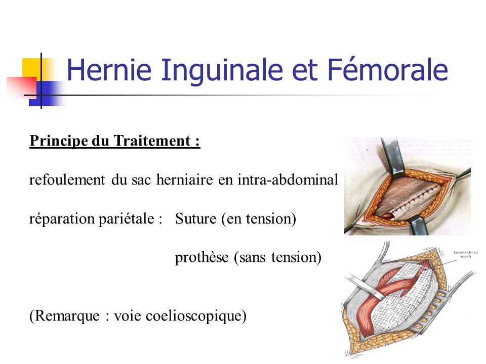 Hernie Inguinale et Fémorale Principe du Traitement : refoulement du sac herniaire en intra-abdominal réparation pariétale : Suture (en tension) proth