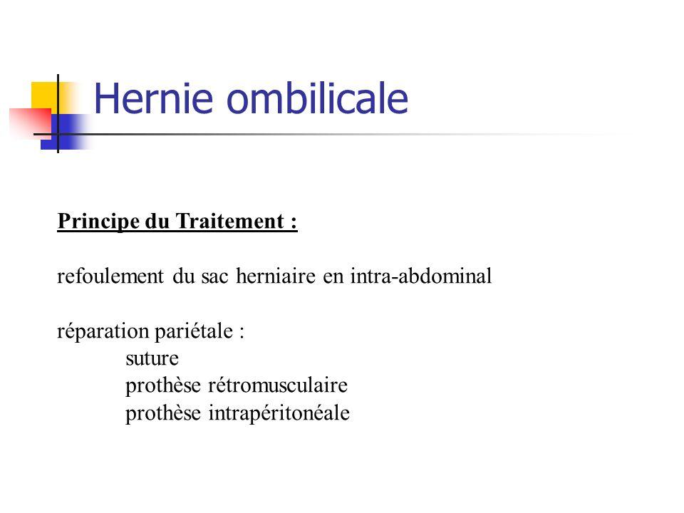 Hernie ombilicale Principe du Traitement : refoulement du sac herniaire en intra-abdominal réparation pariétale : suture prothèse rétromusculaire prot