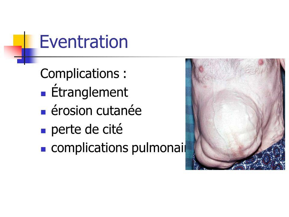 Eventration Complications : Étranglement érosion cutanée perte de cité complications pulmonaires