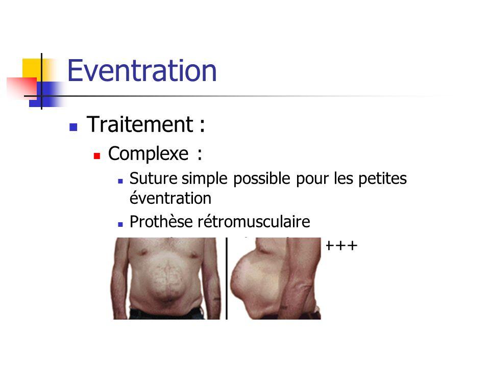 Eventration Traitement : Complexe : Suture simple possible pour les petites éventration Prothèse rétromusculaire Prothèse intrapéritonéale++++